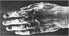 Radiodermite